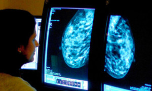 Due pillole per ridurre il cancro al seno  Un'alternativa alle  operazioni chirugiche