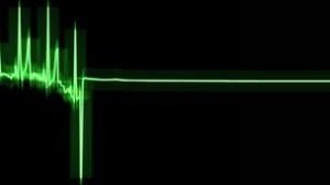 """Il cervello resta attivo dopo il blocco cardiaco  Studio Usa sulle """"visioni"""" pre morte dei sopravvissuti"""