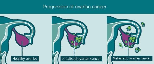 Con un esame del sangue si potrebbe diagnosticare il cancro ovarico