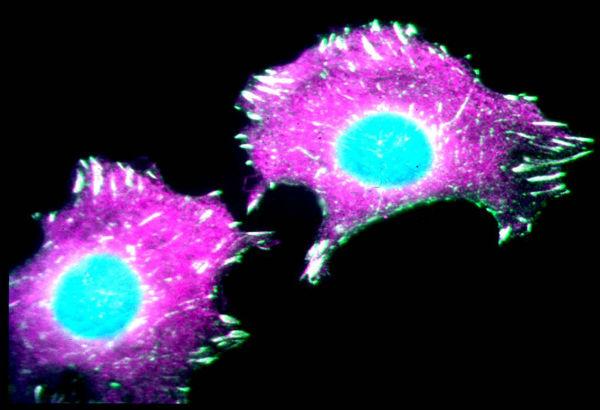 Uk : semplice prelievo di sangue fa scoprire recidive di tumori molti mesi in anticipo