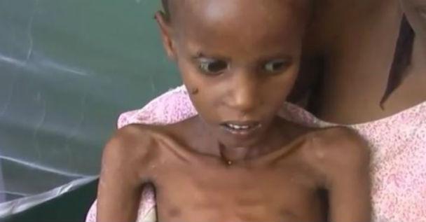 Somalia: allarme Onu su rischio morte per fame di 50 mila bambini