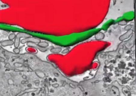 I morti dell'epatite pari a quelli dell'Aids e della tubercolosi