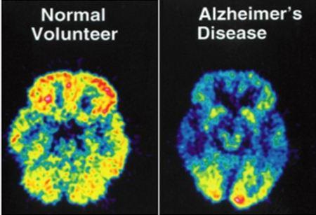 Positiva sperimentazione di un nuovo farmaco contro Alzheimer