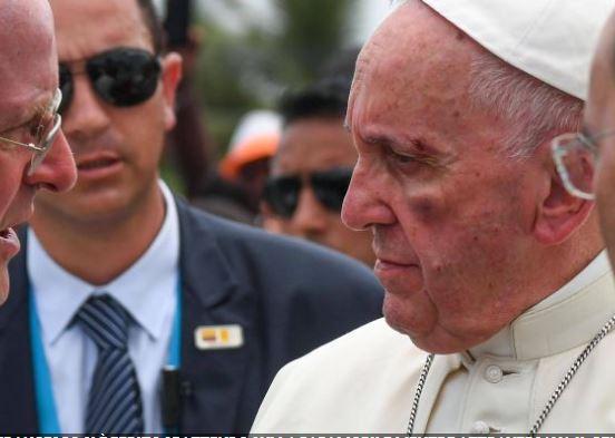 Papa Francesco ferito al volto a Cartagena, in Colombia. E' stato un incidente